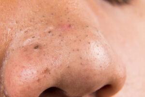 Hvad er en hudorm - hvad er hudorme?